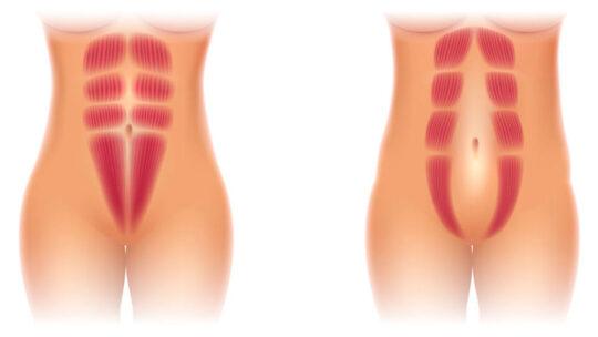 En professionel Delte mavemuskler behandling